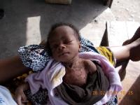 unterernaehrtes-baby-zwei-tage-spaeter-gestorben