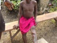 Die kleine Famata vier Monate nach einer kleinen Wunde am Bein