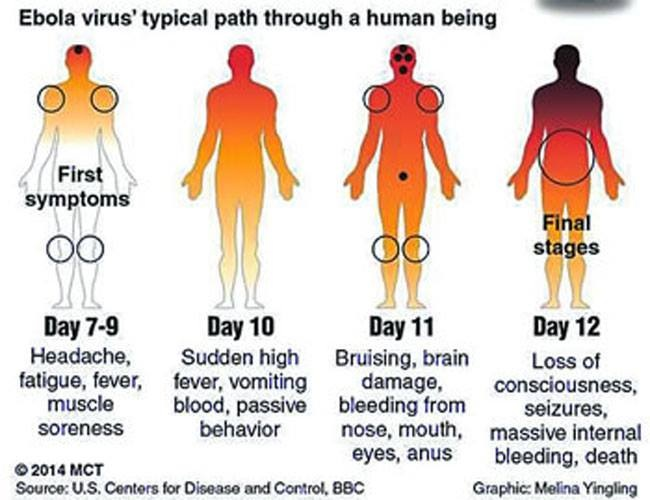 Ebola signs progress